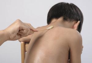 Чесотка у ребенка: симптомы и лечение
