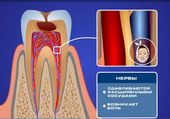 как появляется чувствительность зубов