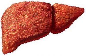 Причины и лечение гепатита В