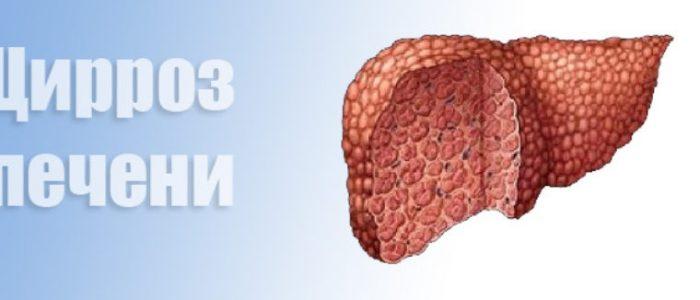 Передается ли цирроз печени?