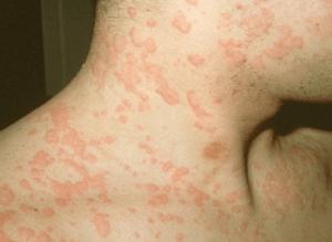 Диета при аллергии крапивницы — меню на день