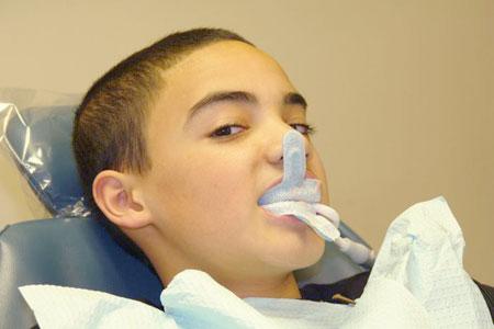 стоматологический электрофорез