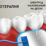 электротерапия в стоматологии
