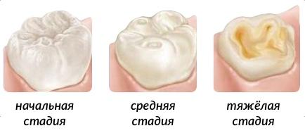 этапы развития эрозии эмали зуба