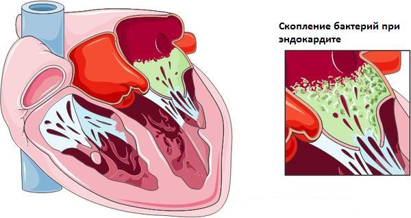 эндокардит схема