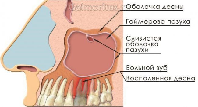 связь носовой полости и зубов