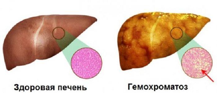 Что такое гемохроматоз?