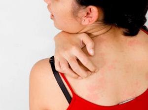 Генерализованная крапивница: в чем опасность и как действовать при первых симптомах?