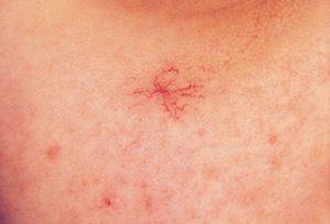 Кожные высыпания при гепатитах