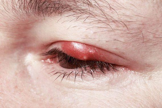 простуда на глазах