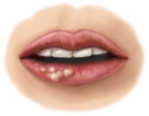 герпетический стоматит на губе