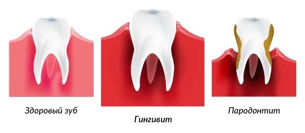 здоровый зуб, гингивит и пародонтит