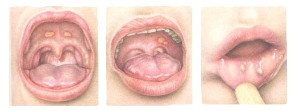пример герпетического стоматита