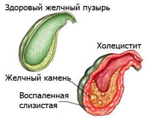 Желчные протоки в печени