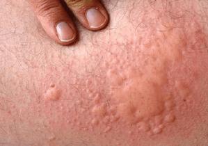 Идиопатическая крапивница у ребенка и взрослого: лечение и симптомы