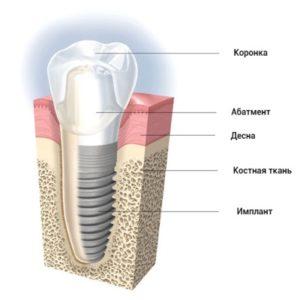 структура имплантата