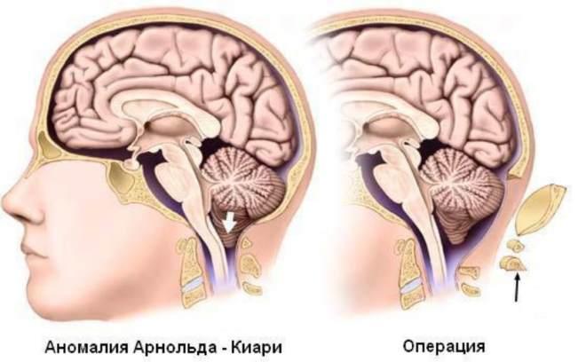 синдром Арнольда-Киари операция