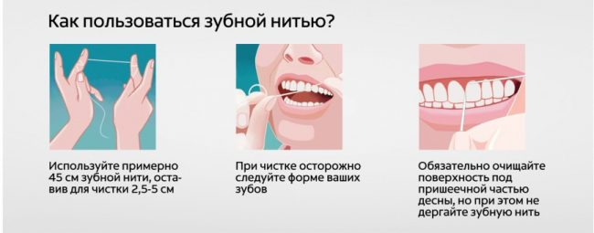 правила использования зубной нити