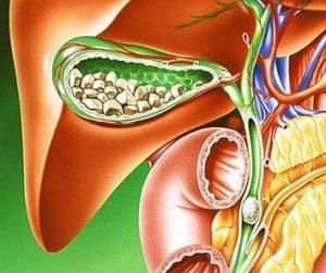 Размеры и симптомы заболеваний желчного пузыря