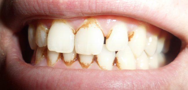камни на зубах при болезнях рта