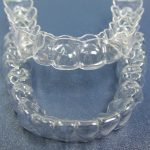 ортодонтическая капа