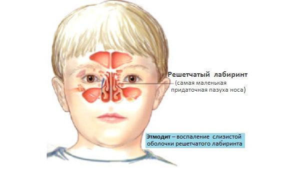 kataralnyj i polipoznyj etmoidit lechenie