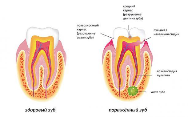 киста на зубном корне