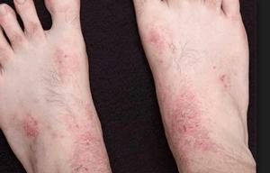 Экзема на ногах — фото, симптомы и методы лечения