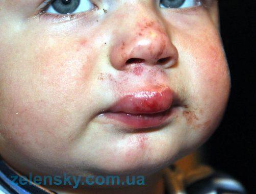 опухла верхняя губа у ребенка