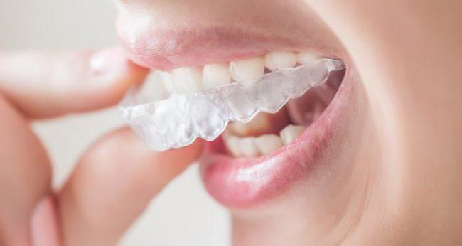 ортодонтические капы для выравнивания