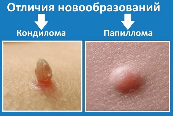 Остроконечный кондилом: лечение лекарствами и народными средствами