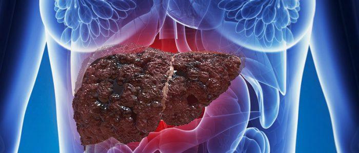 Неалкогольно-жировая болезнь печени