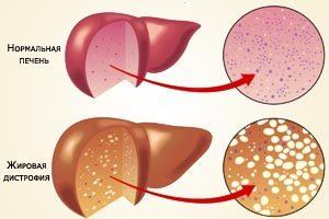 Причины и лечение хронических заболеваний печени