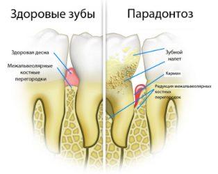 поражённый пародонтозом зуб