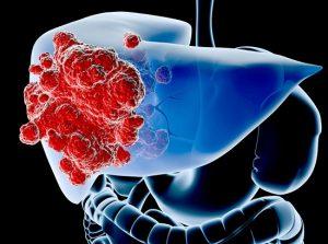 Виды и лечение ангиомы печени