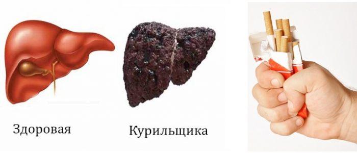 Печень у курильщика