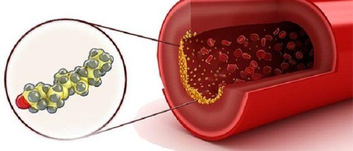 Пониженный холестерин