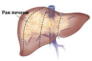 Химиотерапия от метастаз в печени
