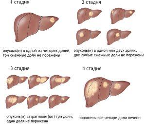Причины и лечение рака печени