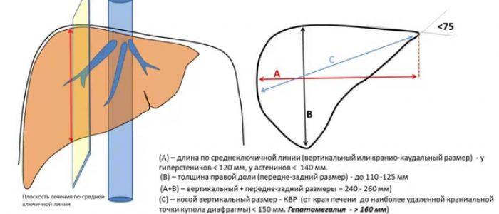 Нормальный размер печени у человека методы определения параметров и причины отклонений
