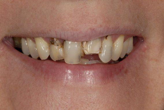 гниение зубов