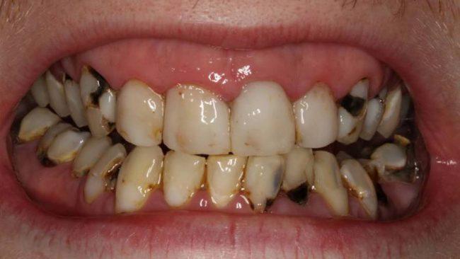 разрушение зубов из-за нехватки минералов