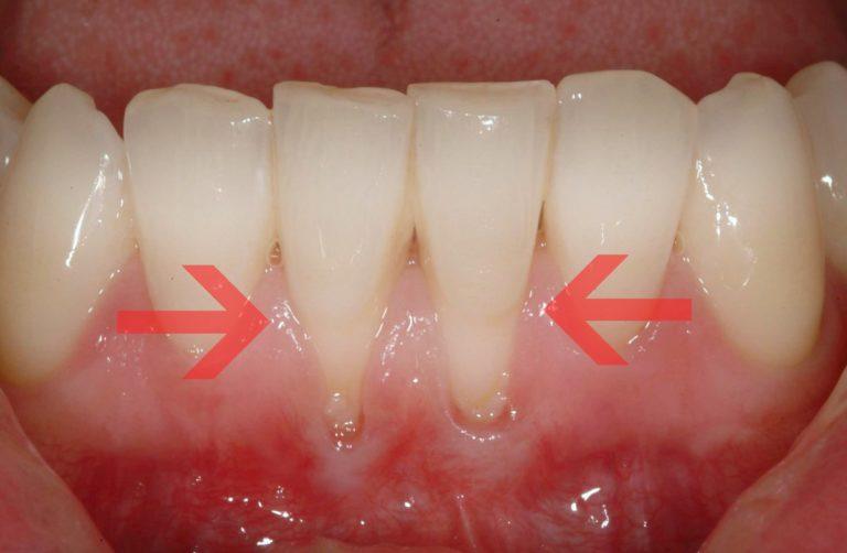 Рецессия десны - обнажение корней зубов