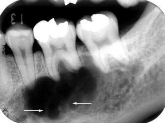 периостит нижней челюсти на рентген-снимке