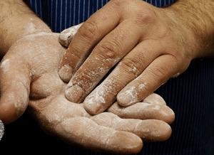 Сильно потеют ладони рук: что делать, эффективные рецепты
