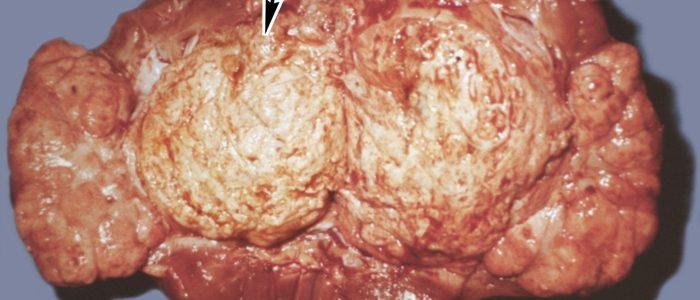 Симптомы и лечение саркоидоза печени