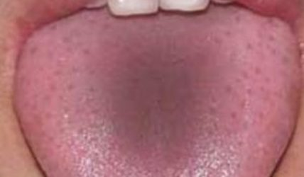 серый язык