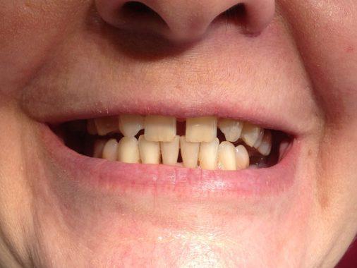 возникновение щелей между зубами