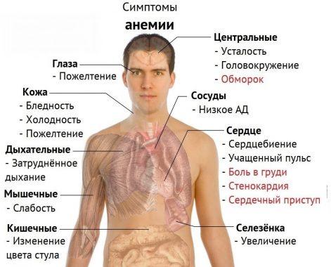 основные симптомы анемии
