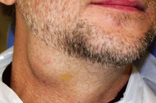 внешний вид слюнокаменной болезни